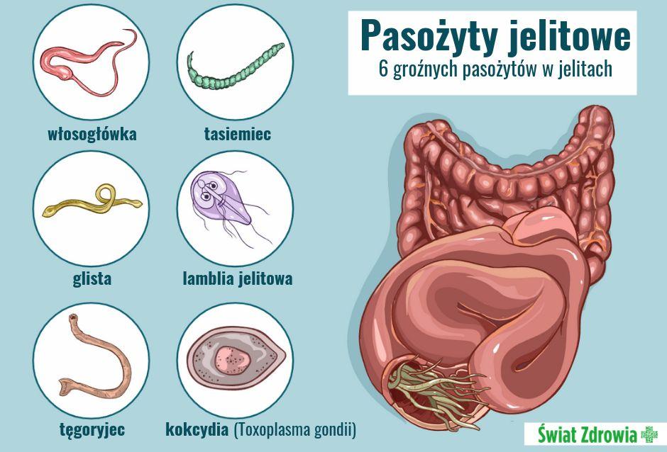 Jakie są objawy pasożytów?